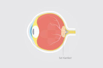 Kanker mata atau retinoblastoma umumnya ditandai dengan mata merah atau keputihan di tengah pupil.
