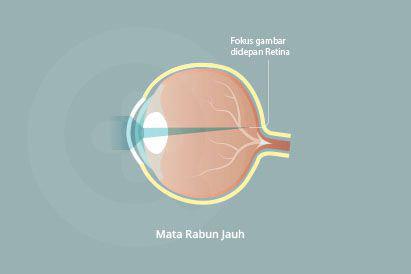 Rabun jauh dapat diatasi dengan penggunaan lensa korektif atau prosedur LASIK