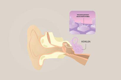 Tinnitus atau telinga berdenging berkaitan dengan usia, cedera, dan gangguan sistem sirkulasi pada telinga