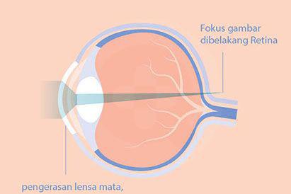 Rabun tua disebabkan oleh pengerasan lensa mata yang terjadi karena penuaan