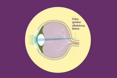 Rabun dekat menyebabkan penglihatan seseorang atas objek yang jaraknya dekat menjadi terlihat buram.
