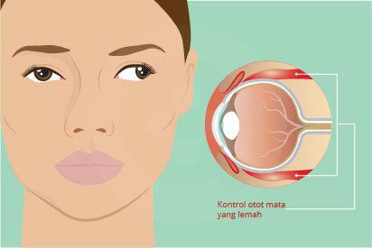 Mata juling ditandai tidak sejajarnya kedua mata dan dapat disebabkan kondisi medis seperti stroke
