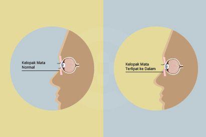 Entropion adalah kondisi ketika kelopak mata terlipat ke arah dalam