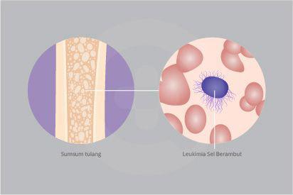 Leukemia sel berambut adalah ketika sumsum tulang membuat terlalu banyak limfosit B abnormal