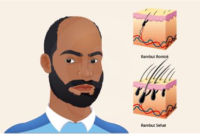 Rambut rontok muncul akibat faktor genetik, perubahan hormon, penyakit, atau efek samping obat