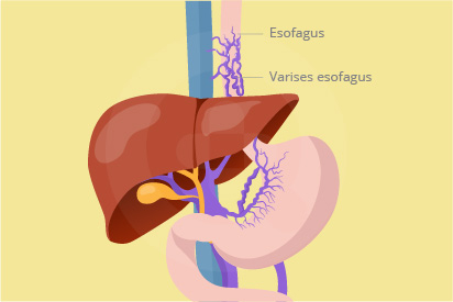 Varises esofagus adalah kondisi pembesaran pembuluh darah vena di kerongkongan