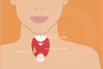 Gejala kanker tiroid bisa berupa benjolan di leher