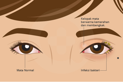 Radang pada kelopak mata atau blefaritis umumnya ditandai gejala seperti mata merah.