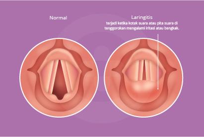 Laringitis adalah iritasi atau pembengkakan pita suara yang ditandai dengan batuk kering dan suara serak
