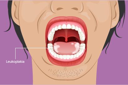 Leukoplakia adalah bercak putih di dalam mulut yang tidak dapat dihilangkan. Pada kasus tertentu, kondisi ini dapat menunjukkan gejala awal kanker mulut.