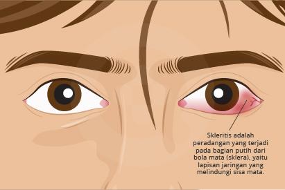 Penyebab skleritis adalah gangguan autoimun atau karena adanya infeksi pada mata, cedera mata, atau parasit.