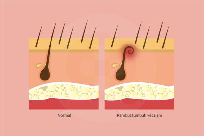 Rambut tumbuh ke dalam merupakan rambut yang tumbuh melengkung dan kembali ke kulit