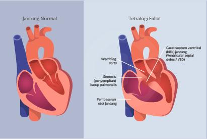 Tetralogy of Fallot adalah kondisi langka akibat kombinasi empat cacat jantung sejak lahir
