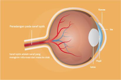 Neuritis optik bisa ditandai gangguan penglihatan sementara di salah satu mata