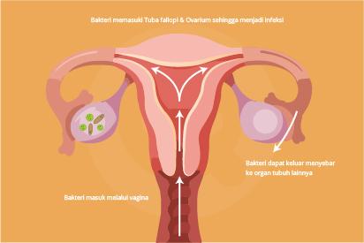 Radang panggul atau pelvic inflammatory disease (PID) adalah infeksi bakteri pada organ reproduksi wanita.
