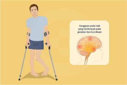 Lumpuh otak atau cerebral palsy adalah sebuah kondisi yang disebabkan oleh gangguan pada otak yang terjadi sebelum
