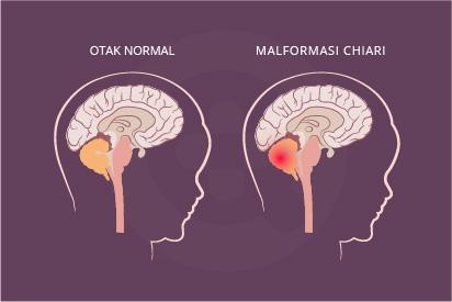 Malformasi Chiari adalah cacat bawaan saat lahir dan merupakan kelainan struktural antara tengkorak dan otak