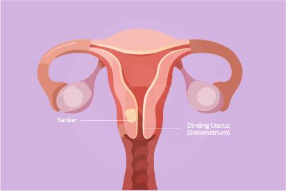 Kanker rahim atau kanker endometrium ditandai adanya pendarahan yang berlebihan dari vagina