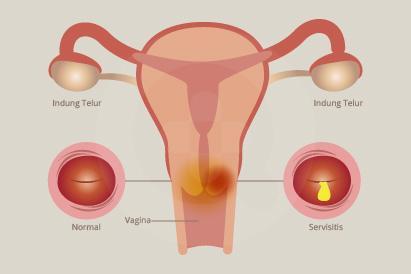 Servisitis merupakan peradangan pada leher rahim