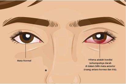 Pada mata penderita hifema biasanya terlihat darah di bagian depan mata