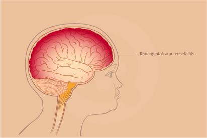 Radang otak adalah adanya peradangan di otak dan dapat mengancam nyawa