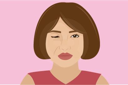 Sindrom Horner terjadi karena adanya gangguan jalur saraf dari otak ke wajah