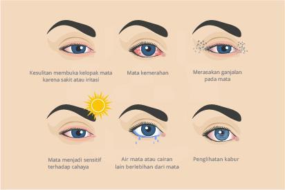 Beberapa gejala radang yang terjadi pada kornea disebut keratitis mata