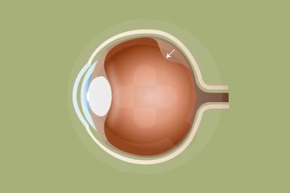 Ablasi retina adalah kondisi ketika retina mata terlepas dari jaringan di sekitarnya.