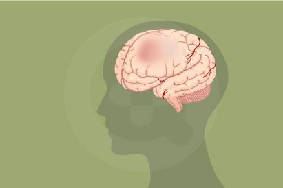 Abses otak disebabkan oleh infeksi jantung, infeksi paru-paru, infeksi telinga, sinus dan abses gigi.