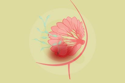 Abses payudara merupakan penumpukan nanah dalam jaringan payudara