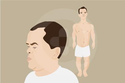 Achondroplasia termasuk gangguan pertumbuhan tulang