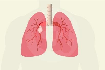 Kebanyakan adenoma bronkus termasuk kanker yang bisa menyebar ke bagian tubuh lain