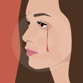 Air mata darah dalam bahasa medisnya disebut hemoklaria