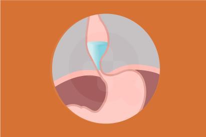 Akalasia disebabkan karena kesulitan esofagus atau kerongkongan untuk mendorong makanan ke lambung