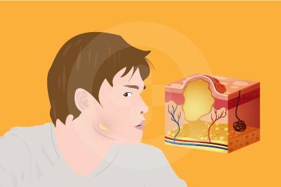 Aktinomikosis bisa meluas ke area tubuh lain