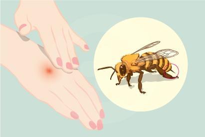 Sengatan lebah dapat menyebabkan reaksi seperti keracunan atau alergi berat