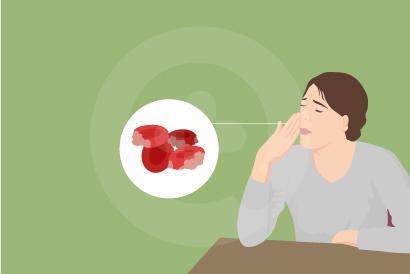 Panas dingin, sesak napas, dan nyeri dada merupakan beberapa gejala penyakit anemia hemolitik.