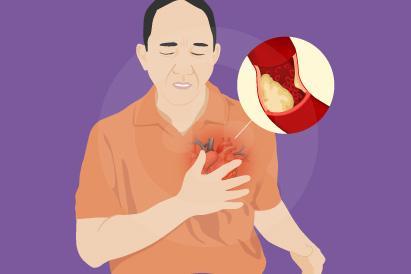 Angin duduk atau angina pektoris merupakan nyeri dada yang kerap dikaitkan dengan serangan jantung