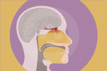 Anosmia adalah kondisi dimana fungsi penciuman pada hidung hilang sepenuhnya