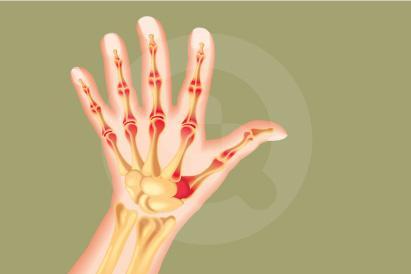 Artritis psoriatika adalah tipe arthritis yang terjadi pada orang yang juga menderita penyakit kulit psoriasis