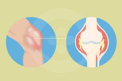Artritis reaktif bisa terjadi akibat infeksi bakteri melalui hubungan seksual atau konsumsi makanan