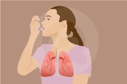 Penyebab asma adalah karena alergi, olahraga berlebihan, dan infeksi saluran pernapasan