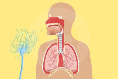 Aspergillosis merupakan reaksi alergi akibat infeksi jamur Aspergillus pada sistem pernapasan