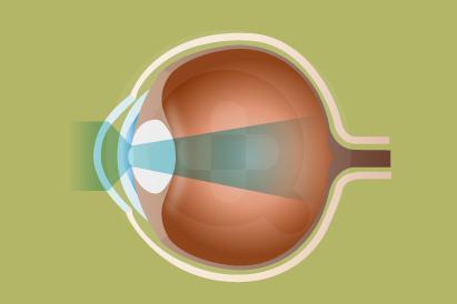 Astigmatisme sering disebut juga dengan mata silinder