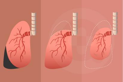 Atelektasis ditandai dengan gejala seperti gangguan pernapasan, nyeri dada, dan meningkatnya detak jantung.