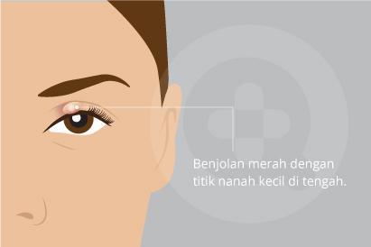 Bintitan adalah benjolan di pinggiran kelopak mata yang terasa sakit dan kemerahan