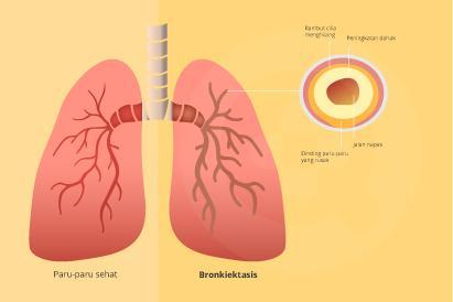 Bronkiektasis dapat diobati dengan konsumsi antibiotik dan ekspektoran
