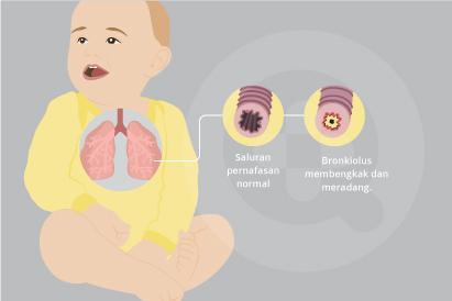 Infeksi paru-paru yang biasa dialami oleh bayi dan anak-anak dikenal sebagai bronkiolitis.