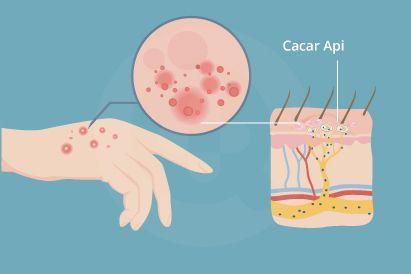 Cacar api atau herpes zoster ditandai dengan ruam dan rasa gatal