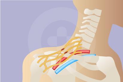 Cedera brachial plexus adalah kerusakan pada kelompok saraf di dada, leher dan ketiak